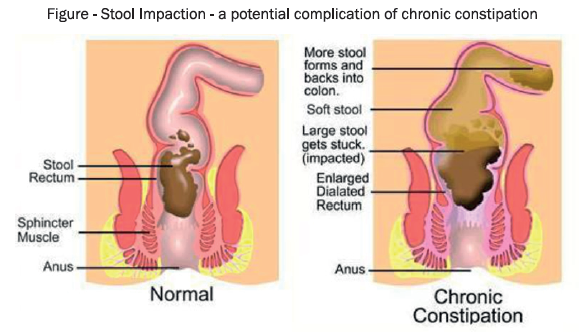 constipation-treatment
