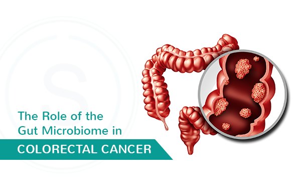The Role Of The Gut Microbiome In Colorectal Cancer Smiles