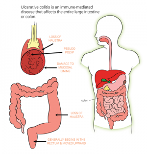 Ulcerative-Colitis-treatment-in-bangalore
